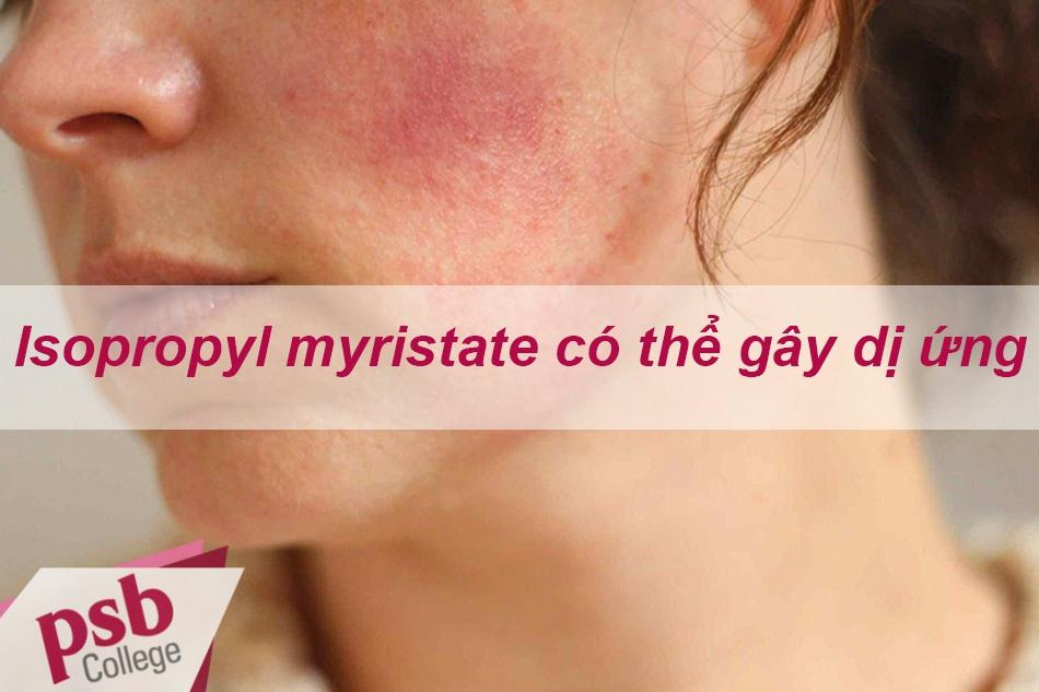 Isopropyl myristate có thể gây kích ứng