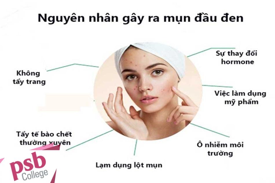 Những nguyên nhân chính gây mụn đầu đen
