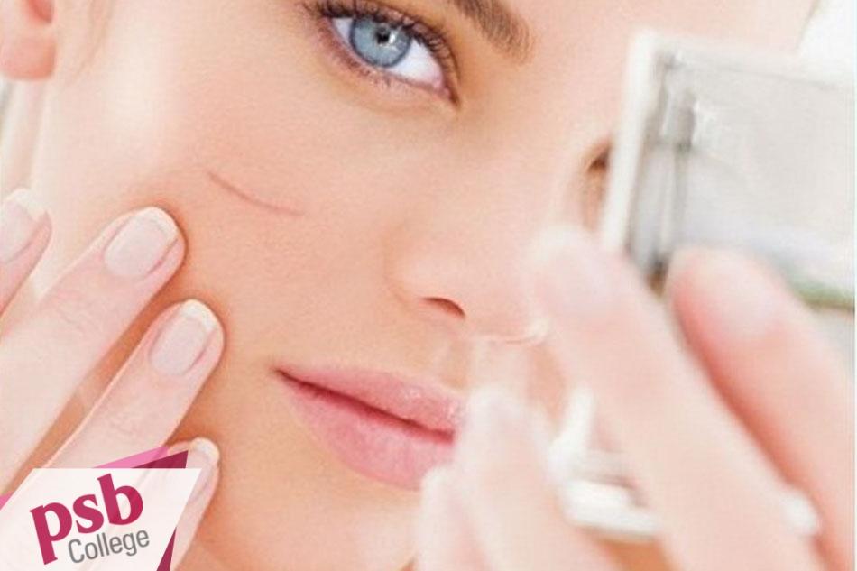 Sẹo lồi ở khuôn mặt ảnh hưởng rất lớn đến giao tiếp hằng ngày