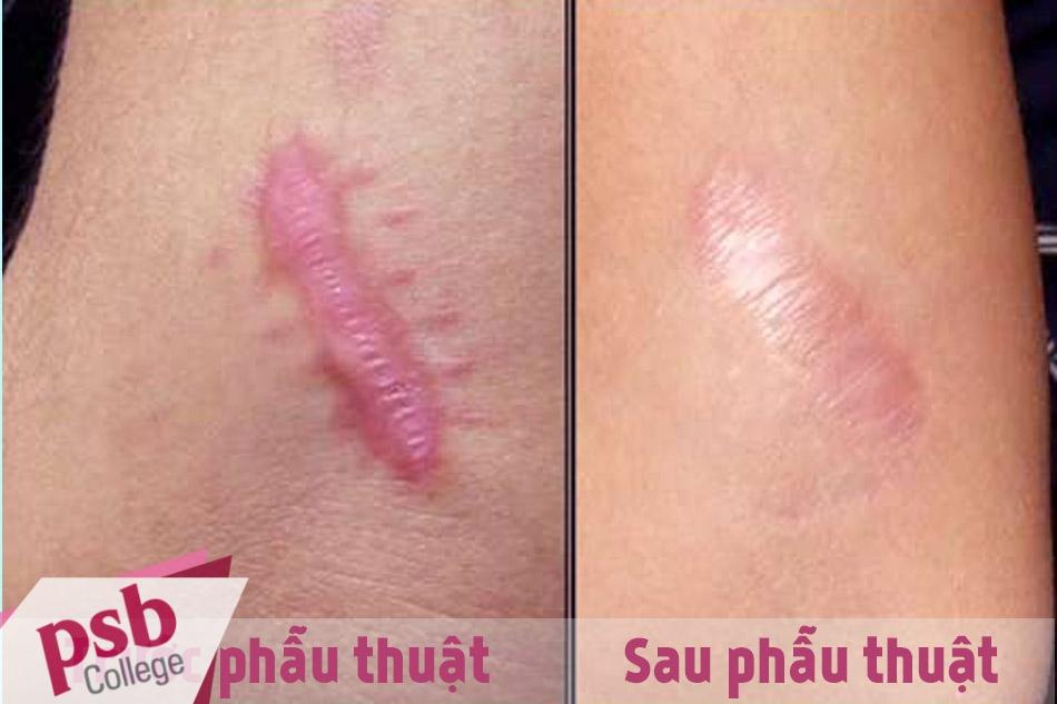Trước và sau khi phẫu thuật cắt bỏ sẹo