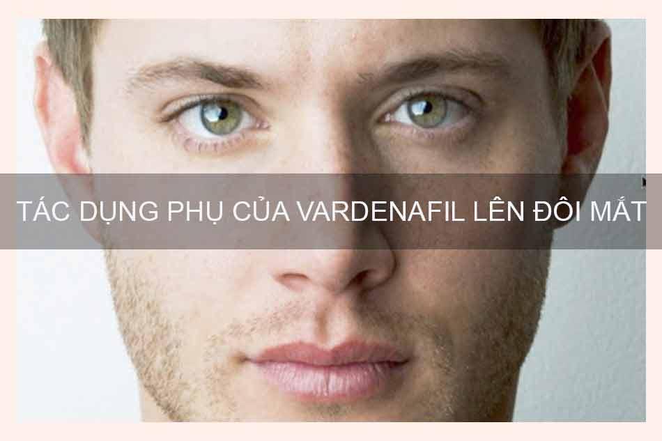 Levina( Vardenafil) có thể gây rối loạn thị giác