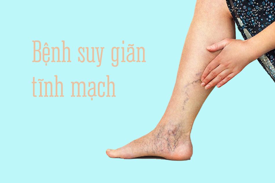 Bệnh suy giãn tĩnh mạch ở chân