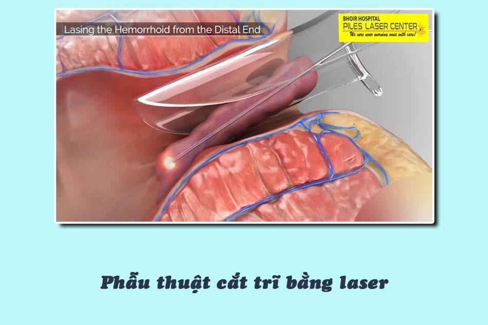 Phẫu thuật cắt trĩ bằng laser