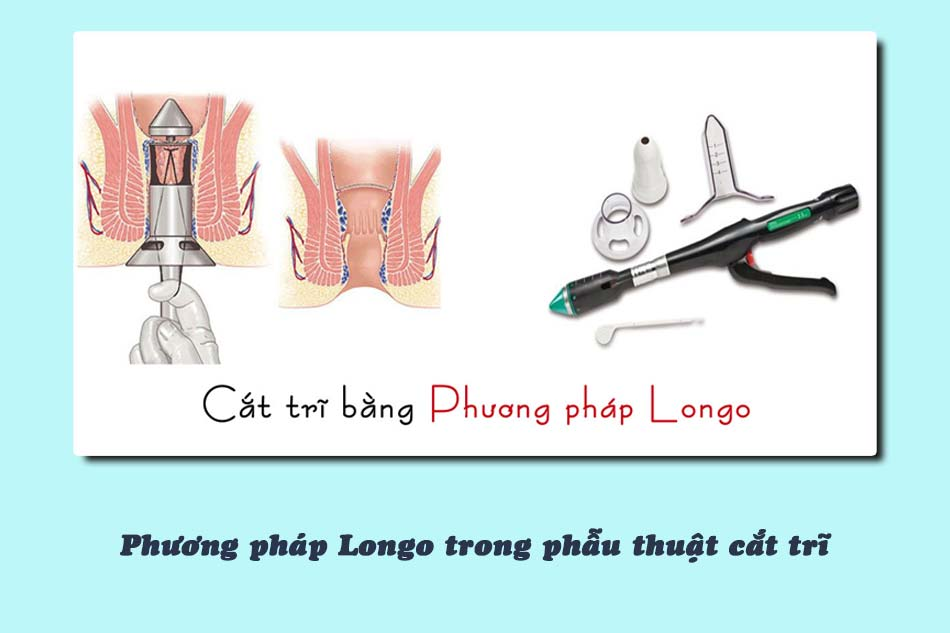 Phương pháp Longo trong phẫu thuật cắt trĩ