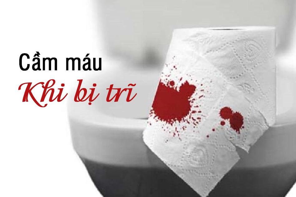 Cầm máu khi bị trĩ