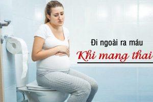 Đi ngoài ra máu khi mang thai