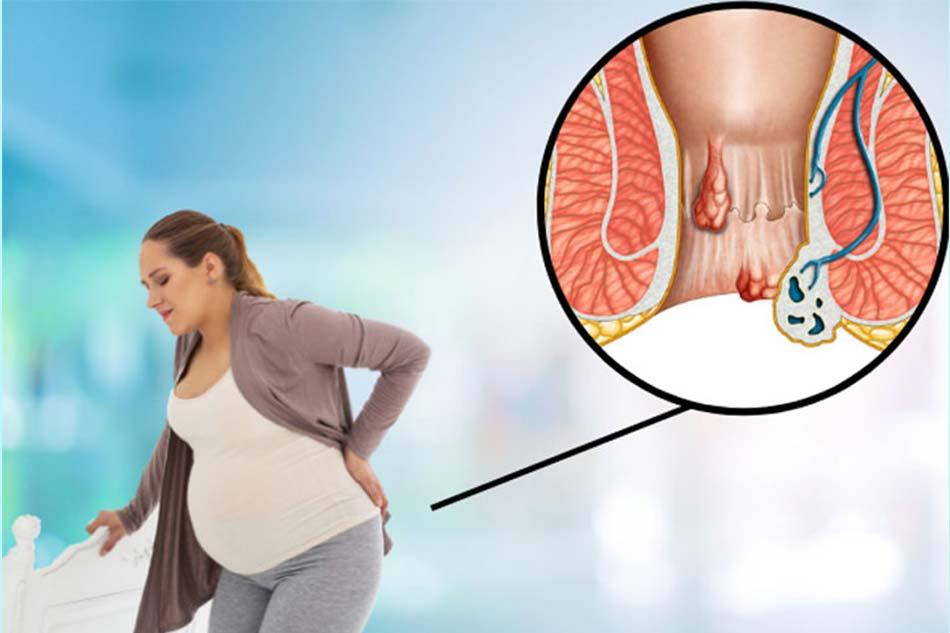 Bệnh lòi dom ở phụ nữ sau sinh là gì? Dấu hiệu nhận biết