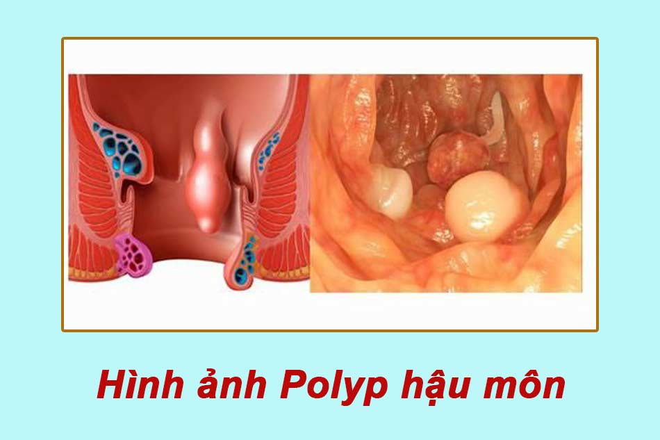 Hình ảnh Polyp hậu môn