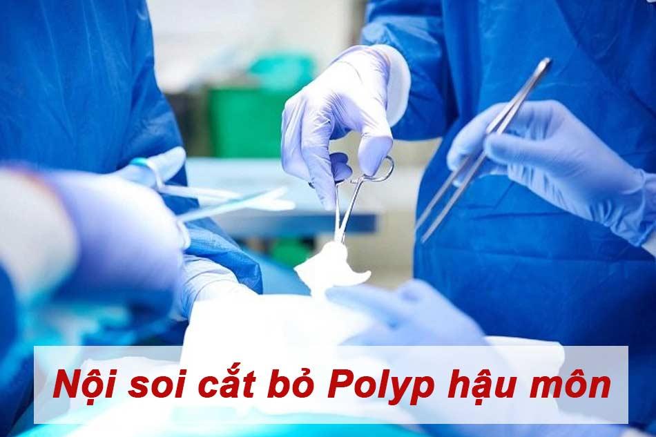 Nội soi cắt bỏ Polyp hậu môn